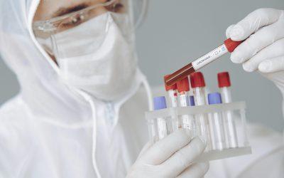 Νέα: Κορονοϊός: Η Εθνική Ασφαλιστική μειώνει την τιμή εξέτασης για τη μοριακή ανίχνευση του Covid19